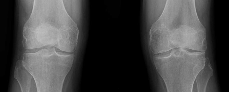 Knee diseases - recognize symptoms with this information